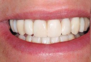 Before and After Invisalign in Modesto