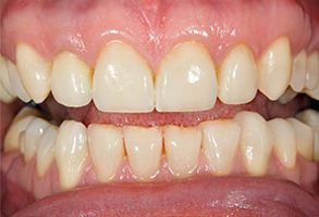 Before and After Teeth Whitening near Salida